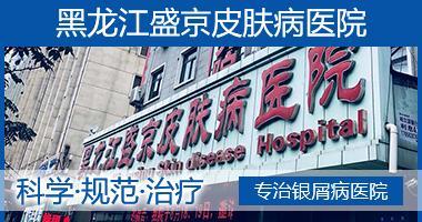 黑龙江盛京医院好不  专注于治疗牛皮癣的医院